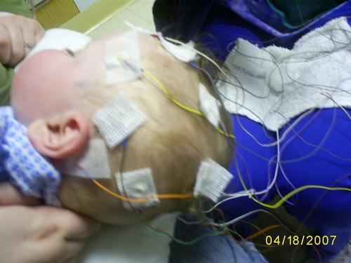 Seamus, EEG