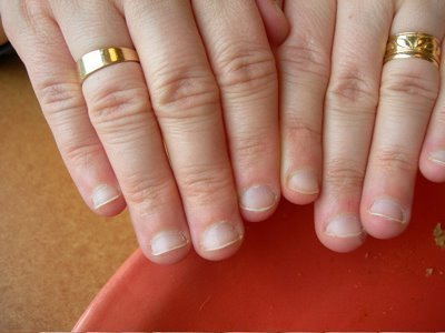 Why Do White People Have Short Nail Beds